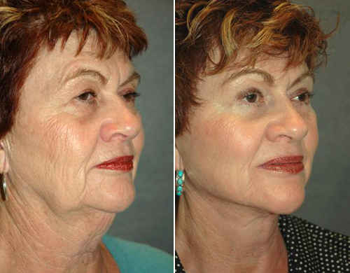 facelift-before